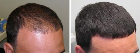 Фото мезотерапия для волос